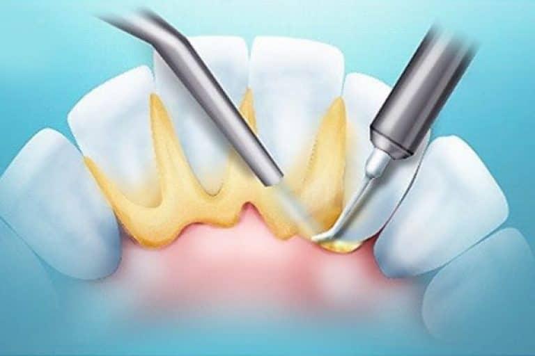 зубной камень лечение